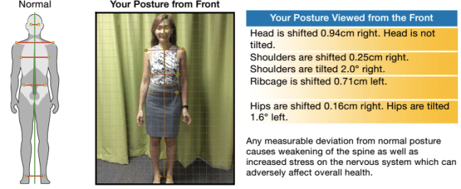 Common Posture Problems for Adults